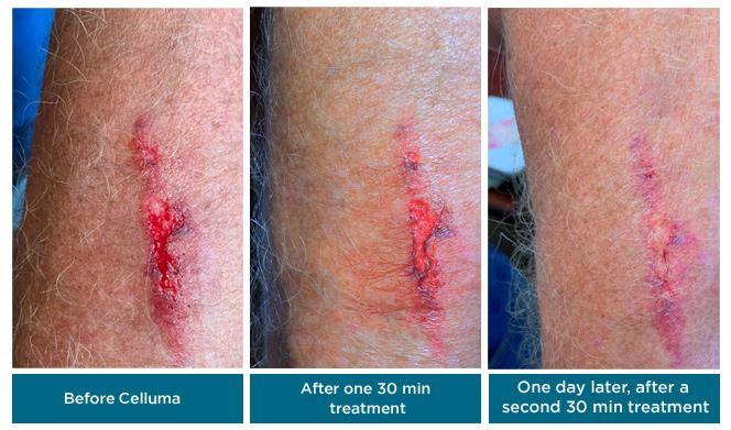 celluma_wound