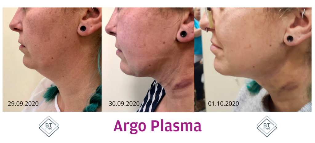 Argo Plasma - efekty zabiegu na podbródku_ BTMED 2